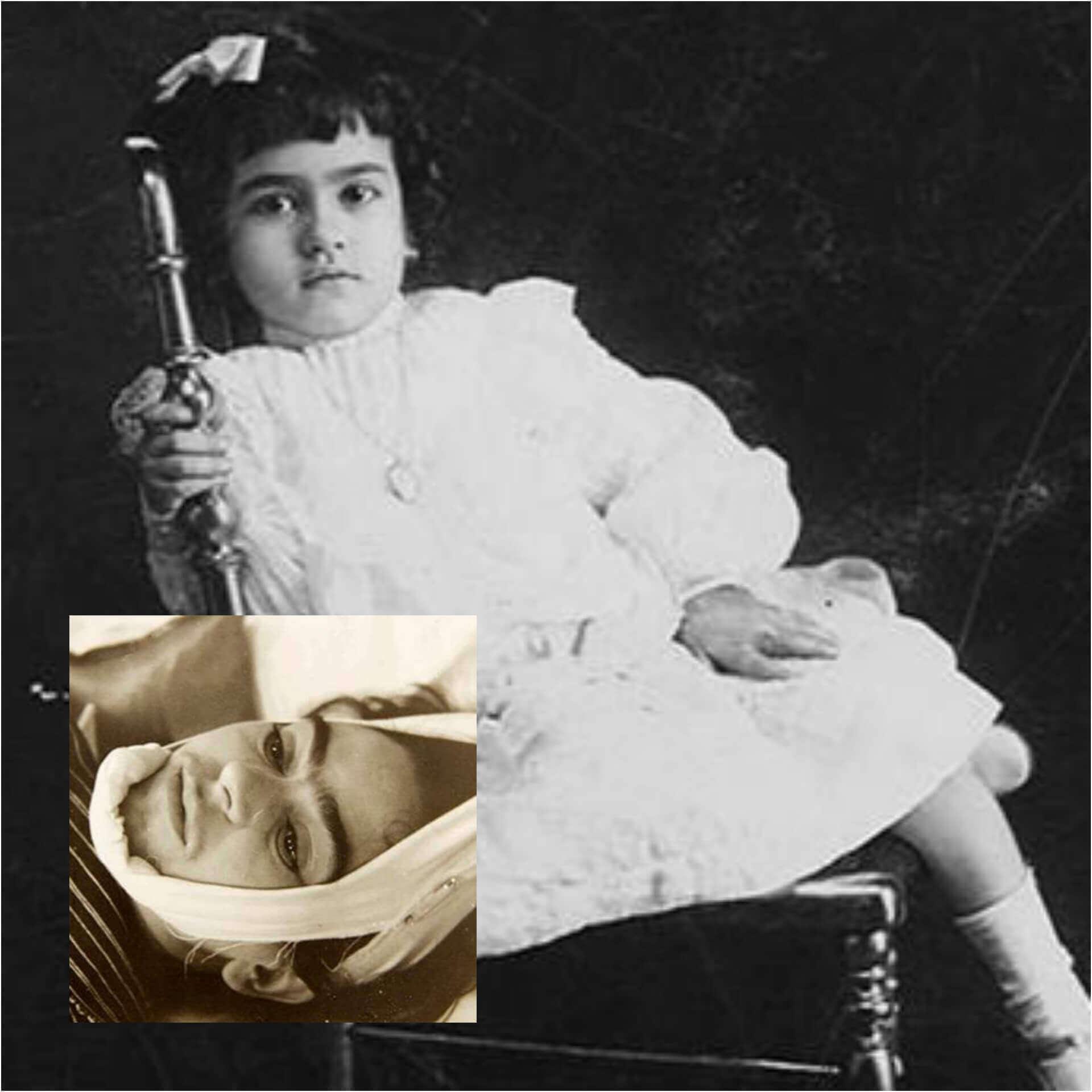 Frida Kahlo çocukluğu (felç sonrası) ve kaza sonrası