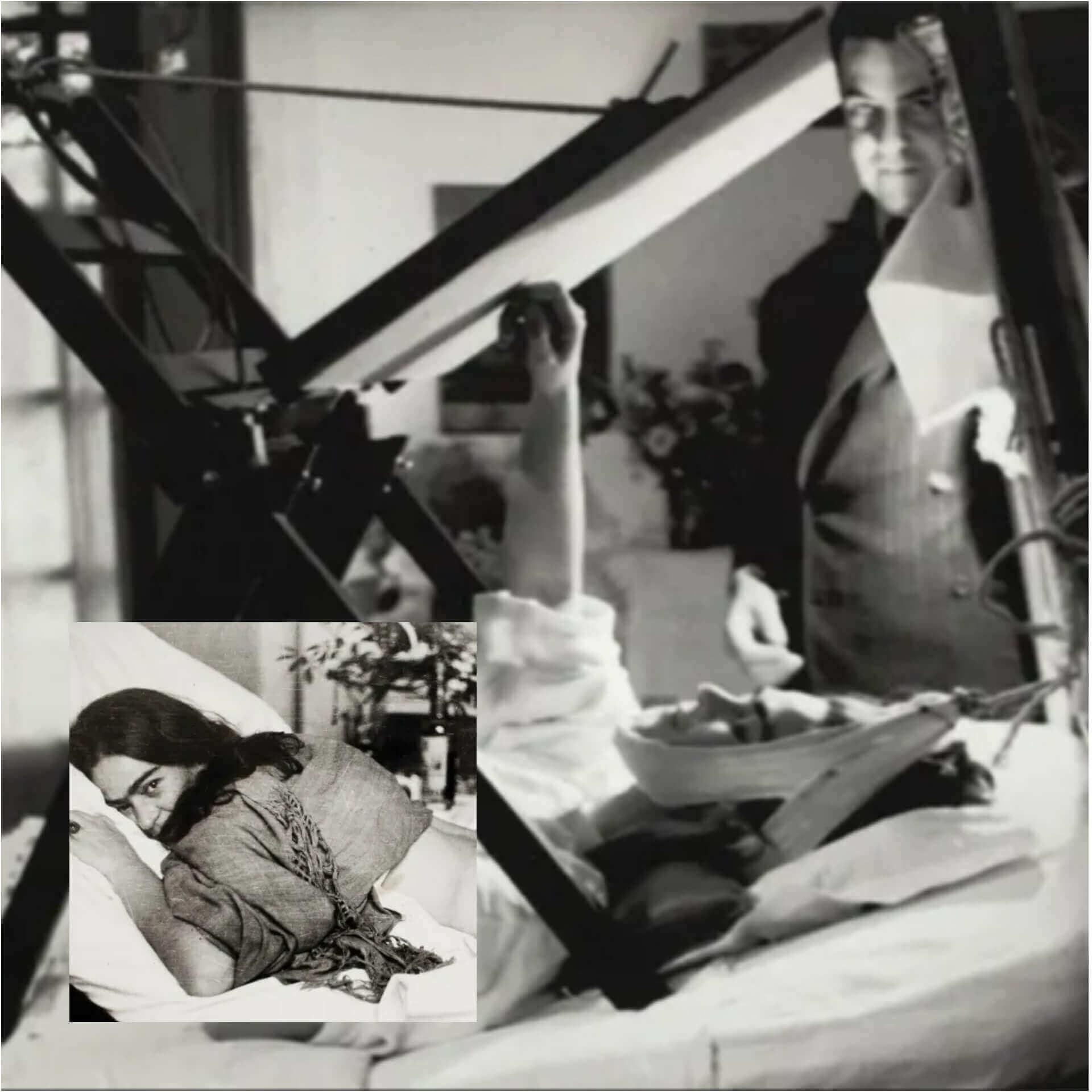 Frida Kahlo Tedavi Süreci